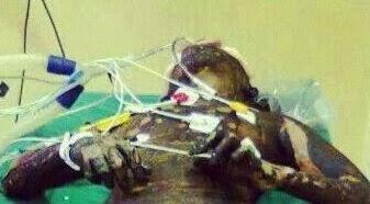 Filha queima viva a própria mãe no Pará