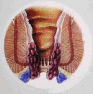 Dampak kandungan hemoglobin pada keadaan badan serta kesusahan BAB