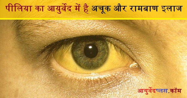Remedies for Jaundice in Hindi