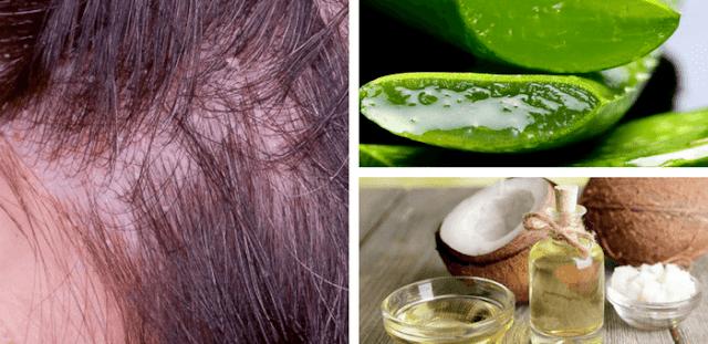 cómo curar la dermatitis seborreica