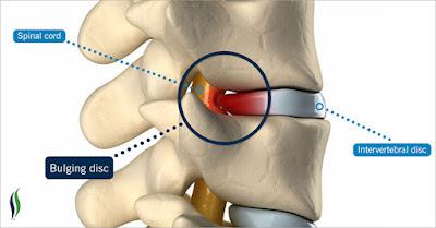 Điều trị thoát vị đĩa đệm cột sống bằng laser chọc qua da