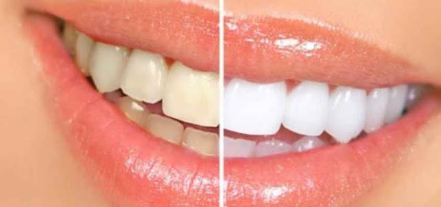 sbiancamento denti ivrea
