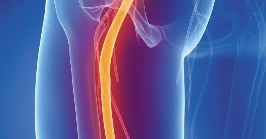 desde donde corre el nervio ciatico