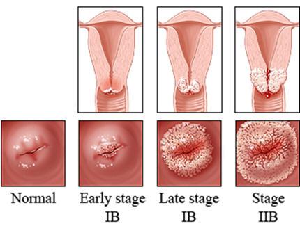 Cara Mengobati Kanker Leher Rahim Terbaik
