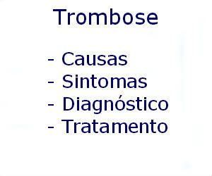 Trombose causas sintomas diagnóstico tratamento prevenção riscos complicações