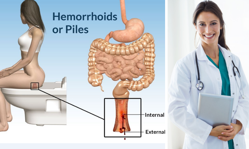 piles treatment,piles,piles treatment at home, treatment for piles,piles treatments home remedies,home remedies for piles,