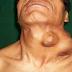 Día Mundial de la Prevención del Cáncer de Cabeza y Cuello