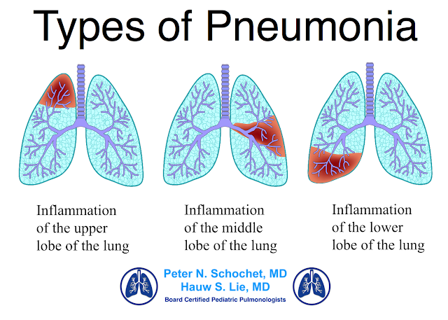 types of Pneumonia