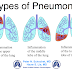CRITICAL NURSING CARE PLAN FOR: Pneumonia