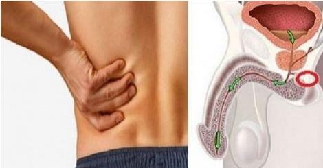 12 síntomas de cáncer de próstata que los hombres no deben ignorar