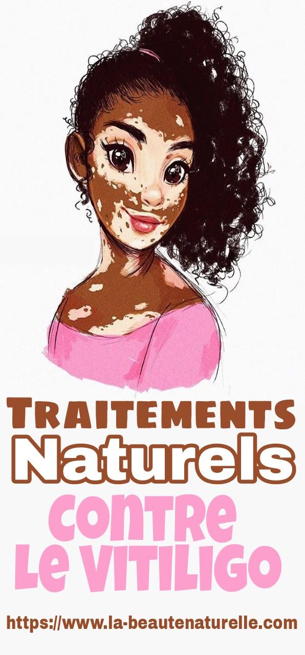 Traitements Naturels Contre Le Vitiligo