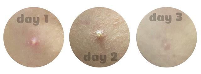 review kem trị mụn pair acne giá rẻ