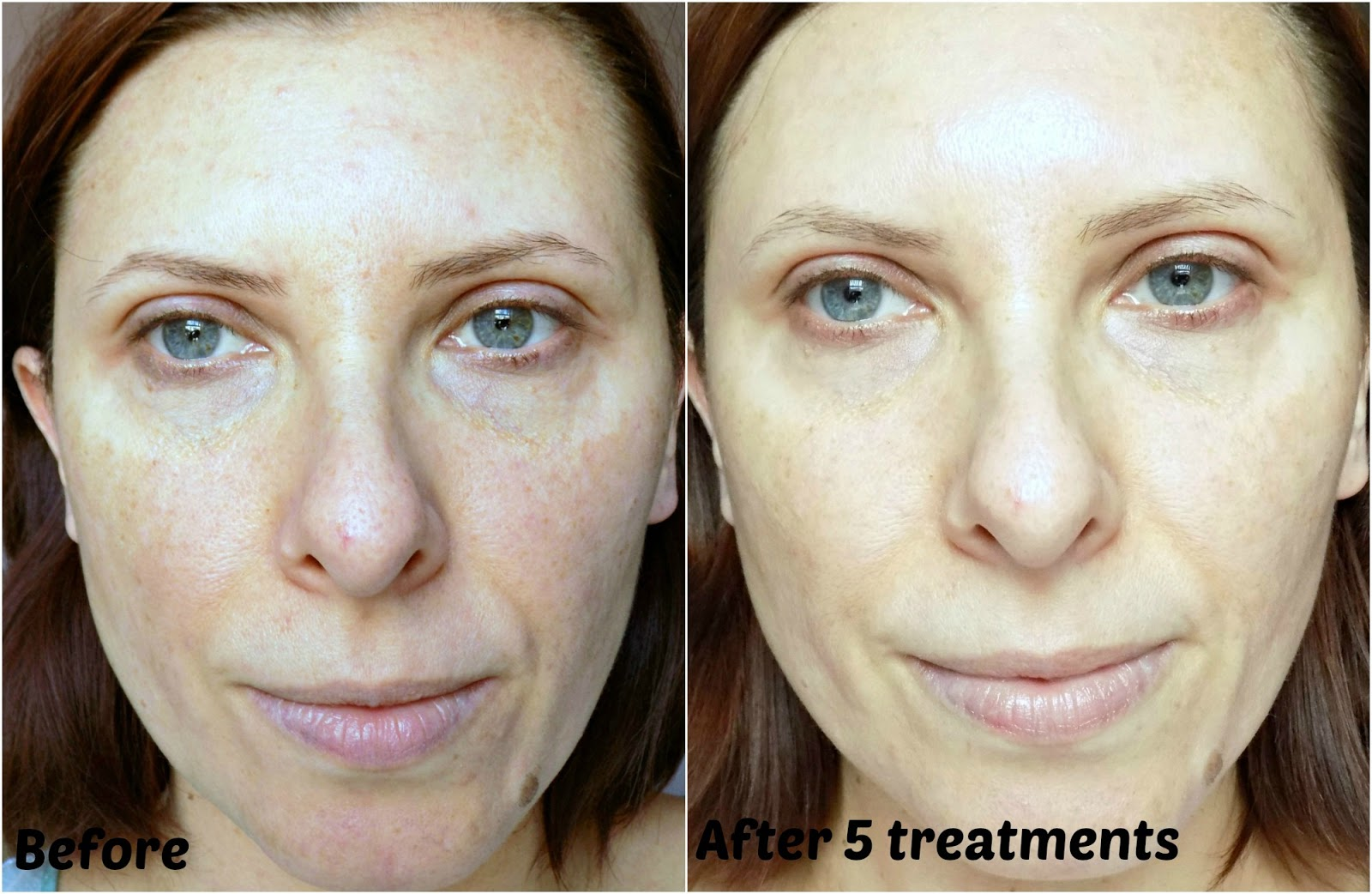 PMD Personal Microderm, review and before & after photos