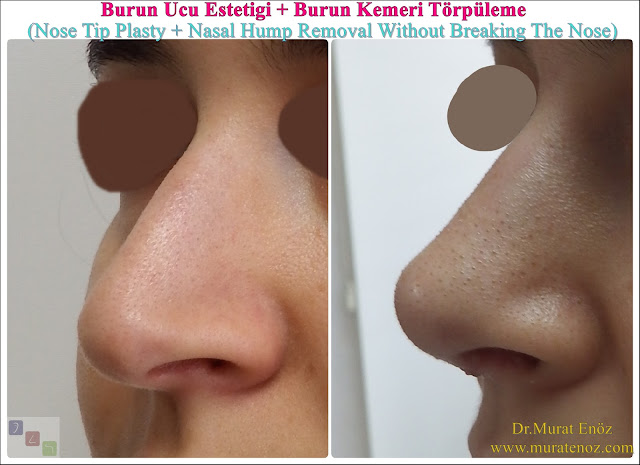 Rhinoplasty Without Breaking Nasal Bone - Rhinoplasty Without Breaking Nasal Bone - Female Nose Aesthetic Surgery - Nose Jobs For Women - Nose Reshaping for Women - Best Rhinoplasty For Women Istanbul - Female Rhinoplasty Istanbul - Nose Job Surgery for Women - Women's Rhinoplasty - Nose Aesthetic Surgery For Women - Female Rhinoplasty Surgery in Istanbul - Female Rhinoplasty Surgery in Turkey