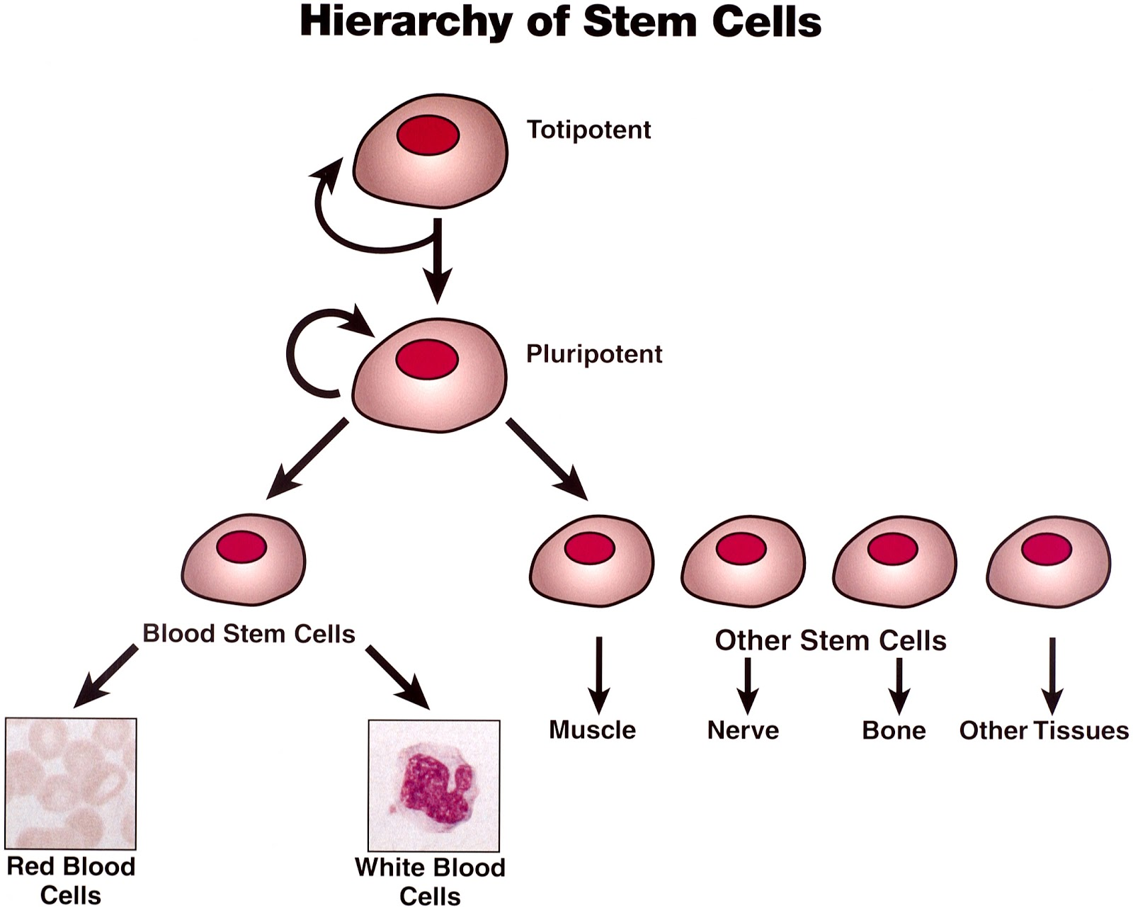 in order to replace damaged marrow stem cells are harvested from  in order to replace damaged marrow stem cells are harvested from either the blood or the bone marrow of the cancer patient before therapy cells a