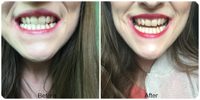 before and after beverly hills formula perfect white gold toothpaste
