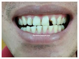 Veneer gigi patah Bali| veneer gigi patah denpasar| veneer gigi patah ngurahrai| veneer gigi patah nusadua | veneer gigi patah jimbaran | veneer gigi patah jember gatsu | veneer gigi patah badung| veneer gigi patah singaraja| veneer gigi patah bagus | veneer gigi patah baik | veneer gigi patah cepat | veneer gigi patah murah | veneer gigi patah aman | veneer gigi patah mudah | veneer gigi patah promo | gambar veneer gigi patah | gambar sebelum dan sesudah veneer gigi patah | perbaiki gigi depan patah| perbaiki gigi depan patah setengah | perbaiki gigi depan patah separuh | perbaiki gigi depan patah | Veneer gigi patah kropos | Veneer gigi patah cuil | gambar sebelum dan sesudah veneer gigi | Veneer gigi patah ahli gigi | veneer gigi patah bagus di Permata Dental Bali |veneer gigi patah baik di Permata Dental Bali | veneer gigi patah cepat di Permata Dental Bali | veneer gigi patah murah di Permata Dental Bali | veneer gigi patah aman di Permata Dental Bali | veneer gigi patah mudah di Permata Dental Bali | veneer gigi patah promo di Permata Dental Bali | gambar veneer gigi patah di Permata Dental Bali | gambar sebelum dan sesudah veneer gigi patah di Permata Dental | perbaiki gigi depan patah di Permata Dental Bali | perbaiki gigi depan patah setengah di Permata Dental Bali | perbaiki gigi depan patah separuh di Permata Dental Bali | perbaiki gigi depan patah di Permata Dental Bali | Veneer gigi patah kropos di Permata Dental Bali | Veneer gigi patah cuil di Permata Dental Bali | gambar sebelum dan sesudah veneer gigi di Permata Dental Bali | Veneer gigi patah ahli gigi di Permata Dental Bali