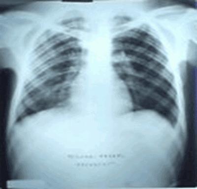 Cliché Thoracique iNterprété 11 | miliaire carcinomateuse, pneumoconiose