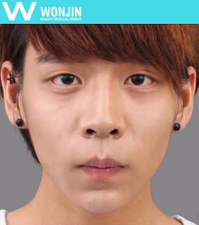 Look More Into Wonjin Plastic Surgery Before and After