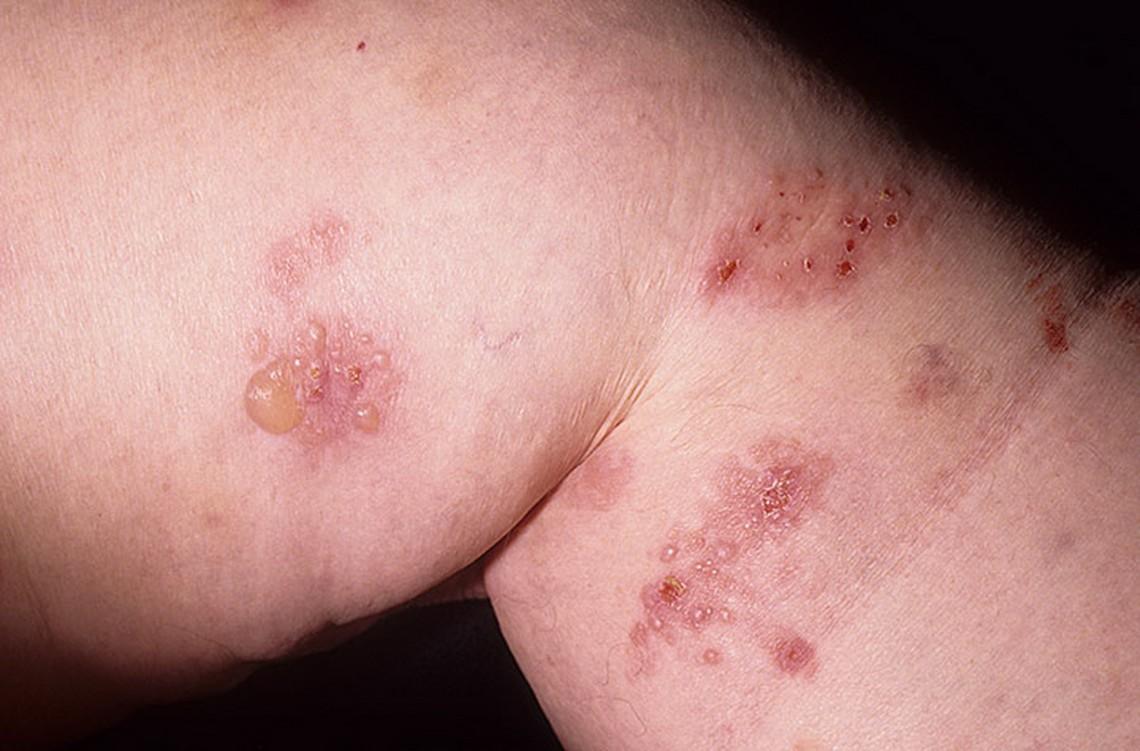 Dermatita herpetiforma