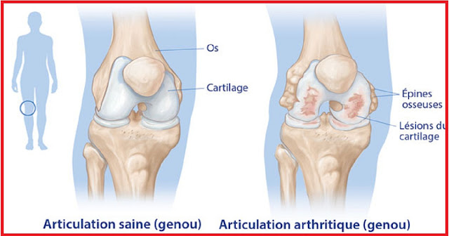 arthrite-image