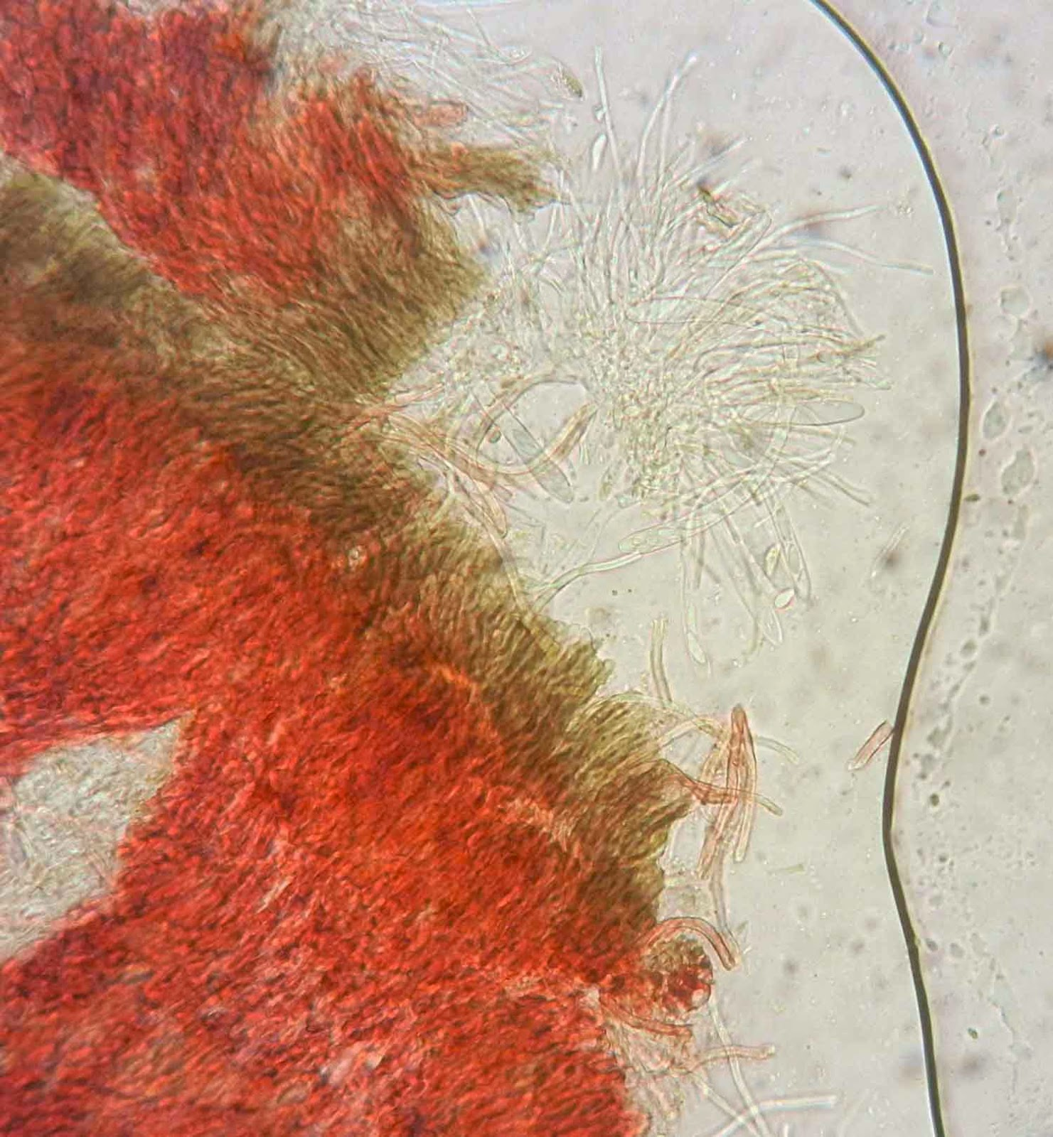 Patinellaria sanguinea under microscope