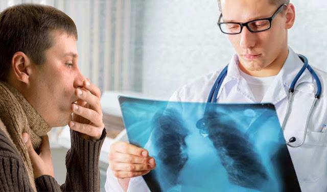 Penyebab dan Gejala Penyakit Paru Obstruktif Kronik