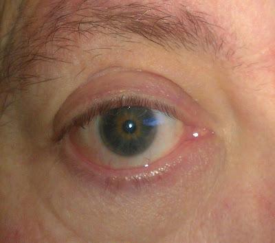 a close up of an eye.
