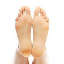 Dolor de pies