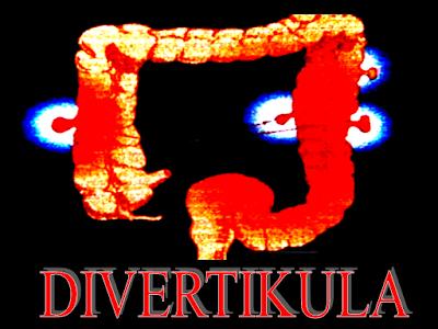 Nutrelle Eskayvie