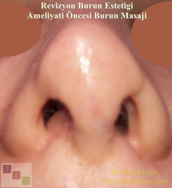 Nose massage before revision nose surgery - Nose massage before revision rhinoplasty - Benefits of nose massage before revision nose surgery - How to do a nose massage?