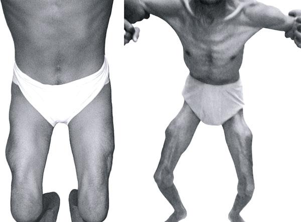 Obat Untuk Terapi Distrofi Otot Duchenne Telah Disetujui