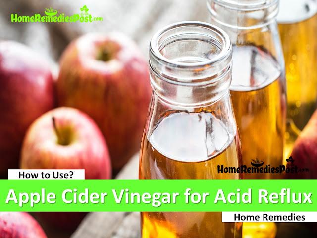 Apple Cider Vinegar For Acid Reflux, Apple Cider Vinegar And Acid Reflux, How To Use Apple Cider Vinegar For Acid Reflux, Home Remedies For Acid Reflux, Acid Reflux Treatment, How To Get Rid Of Acid Reflux, Acid Reflux Remedies, How To Get Relief From Acid Reflux, Acid Reflux Home Remedies, Treatment For Acid Reflux, How To Cure Acid Reflux, Relieve Acid Reflux, Acid Reflux Relief