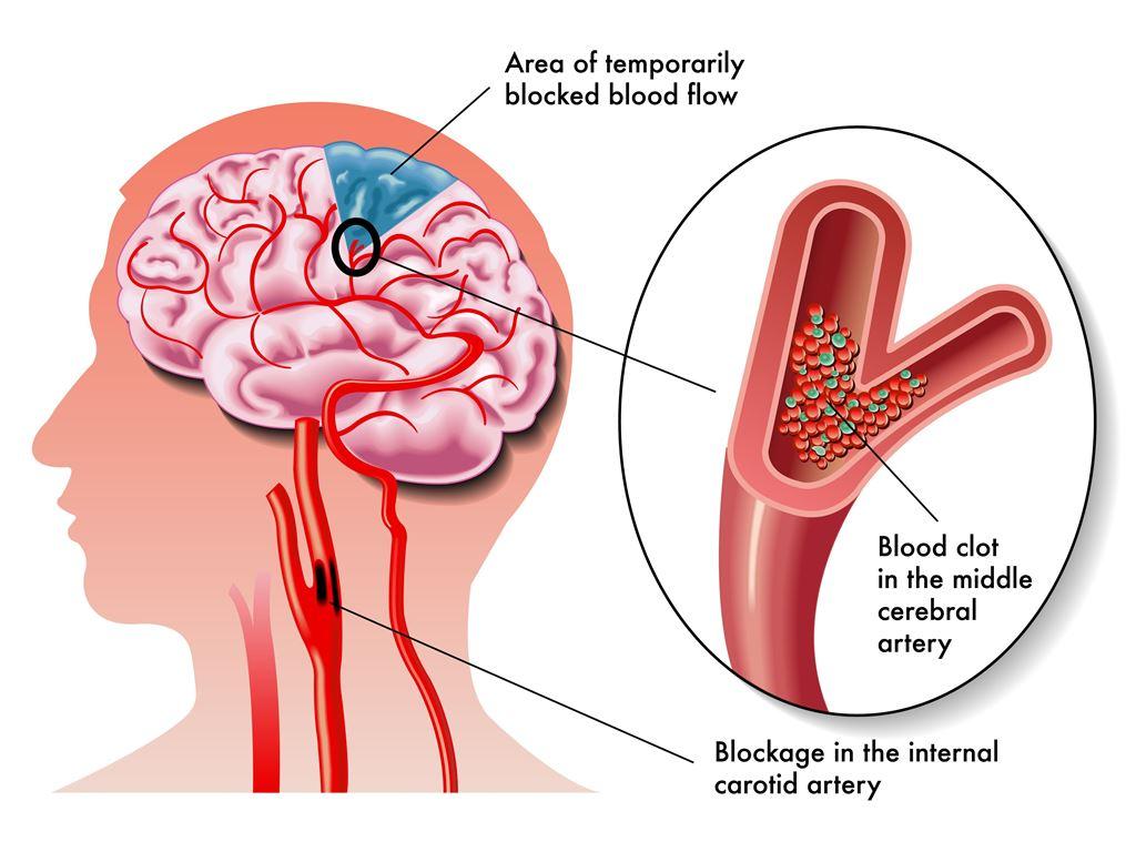 Paket Terapi untuk Stroke