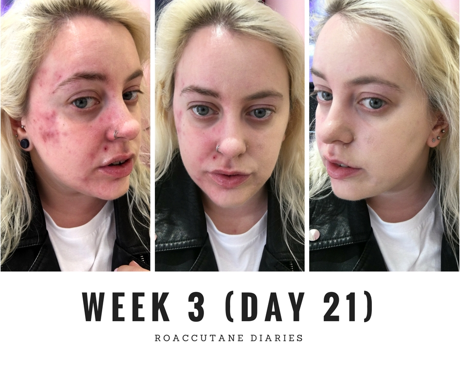finding makeup for roaccutane