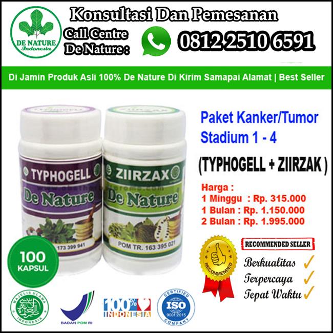 Nama Obat Kanker Payudara Stadium 4 Bisa Disembuhkan Dengan