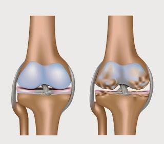 Cara Mengobati Osteoarthritis Lutut Secara Alami