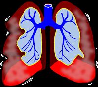 bronchite asthmatiforme chez les enfants