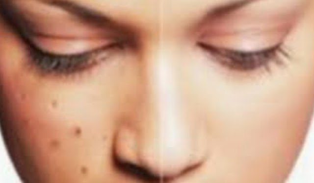 Cara Cepat Menghilangkan Bintik Hitam Bekas Jerawat