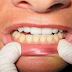 This Is What Happens To Your Teeth If You Brush with Sea Salt and Baking Soda