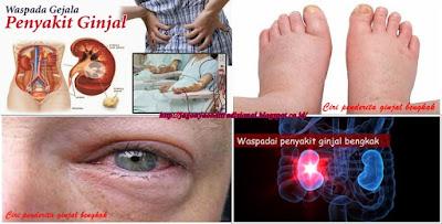 http://jagonyaobattradisional.blogspot.co.id/2017/04/jagonya-obat-tradisional-ginjal-bengkak.html