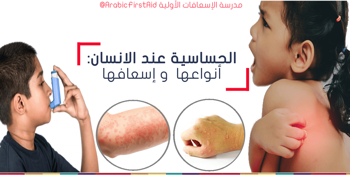 first-aid-Allergies حساسية الجلد