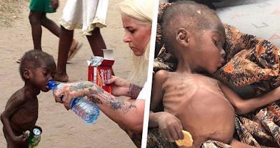 Este niño nigeriano de dos años que fue abandonado por su familia por una insólita razón