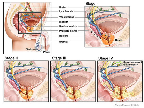 prostatitis y cura natural