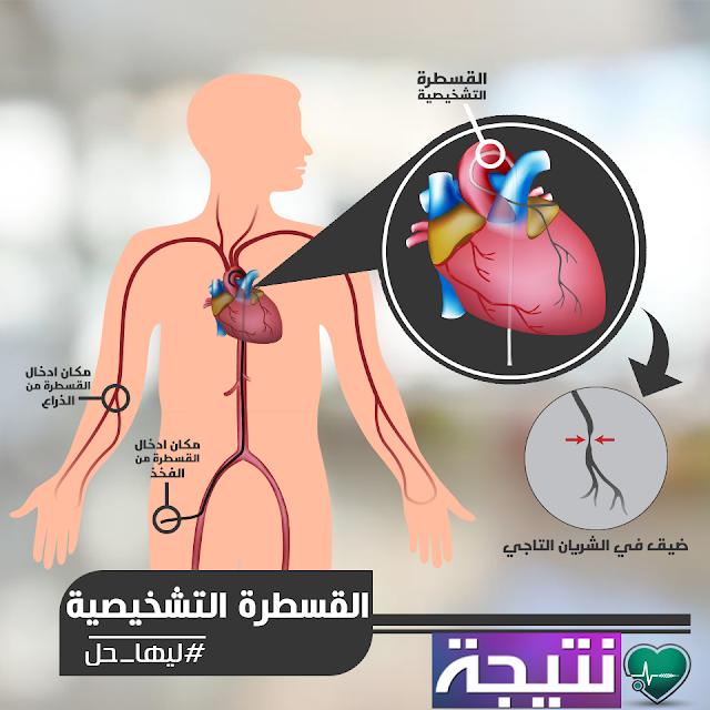 اعرف أكثر عن القسطرة القلبية