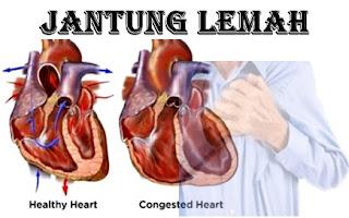 Cara Mengobati Jantung Lemah Secara Efektif Tanpa Efek Samping