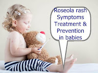 Roseola rash symptoms in babies