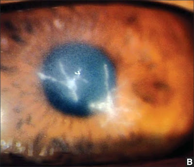 Fig. 2.6B: 10 days old clinical presentation of two feathery edged corneal lesions separated by a clear corneal region. This is an unusual presentation of a satellite lesion, which is usually round in shape
