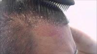http://www.fatmawatisusi.com/2016/09/pengobatan-tradisional-untuk-psoriasis.html
