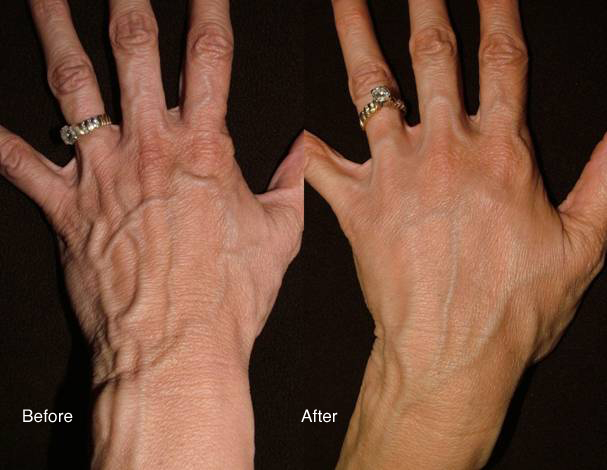 Radiesse dermal filler before and after on hands